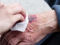 工伤鉴定时间要多久?工伤鉴定的相关法律有哪些?